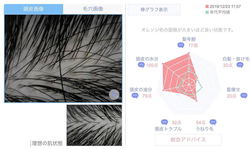 頭皮のデータ